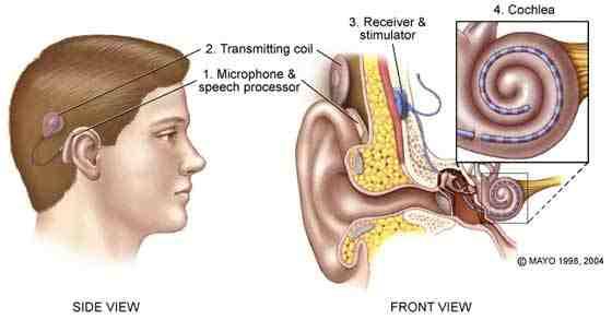 Kaaviokuva kuuloimplantista.